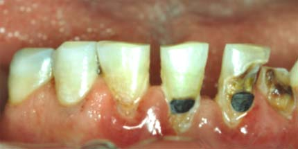 Brown Spots on Baby Teeth http://www.dentists.gr/white-fillings